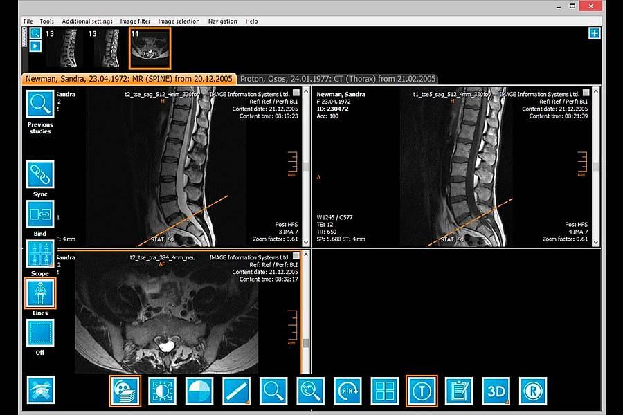 IQ-VIEW study screenshot of spines