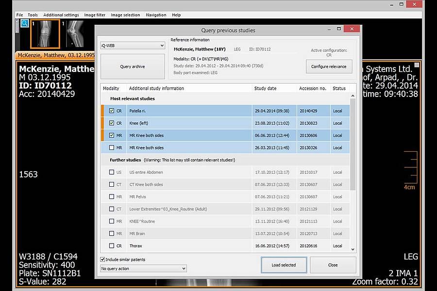 IQ-View import query screenshot