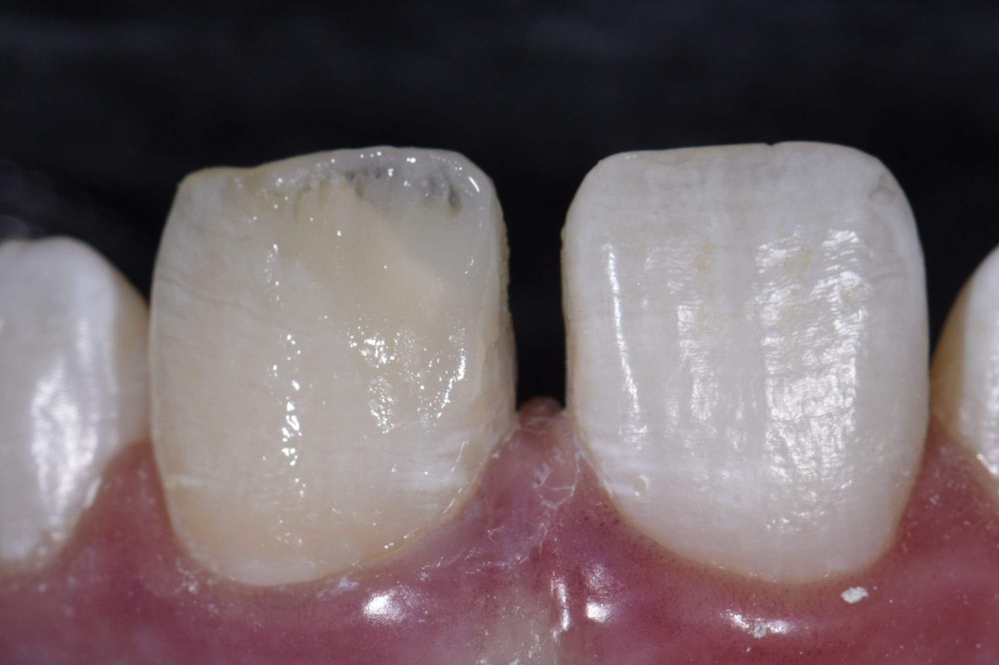 Dentin body construction utilizing shade Si2.